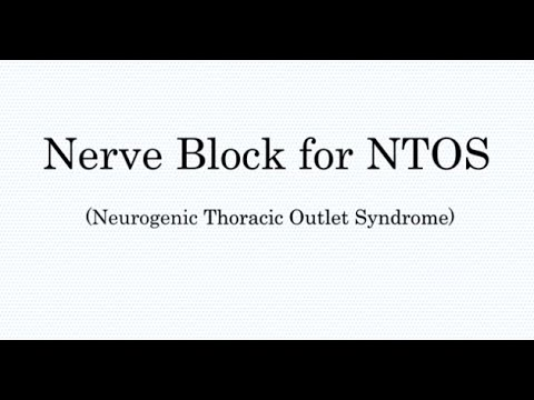 Nerve Block Treatment for Thoracic Outlet Syndrome (TOS) - YouTube