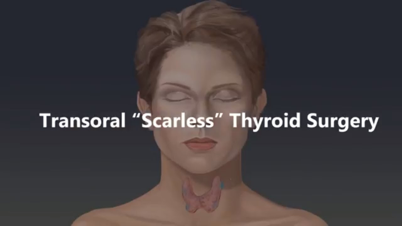 Transoral 'Scarless' Thyroid Surgery Animation - YouTube