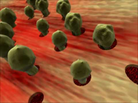 Johns Hopkins Medicine: Aplastic Anemia