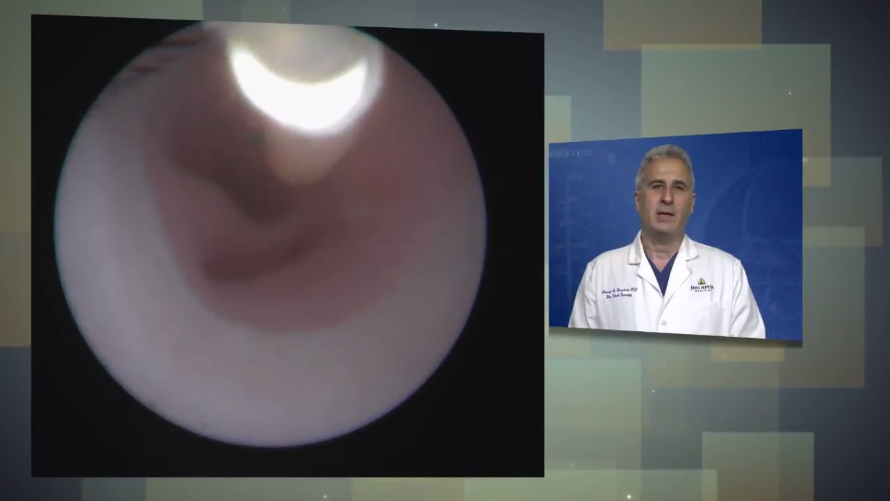 Fetoscopic Tracheal Occlusion Procedure for Congenital Diaphragmatic Hernia (CDH) - YouTube