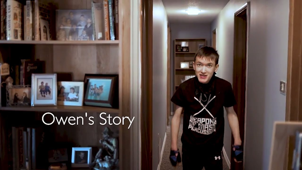 Skeletal Reconstruction | Owen's Story - YouTube