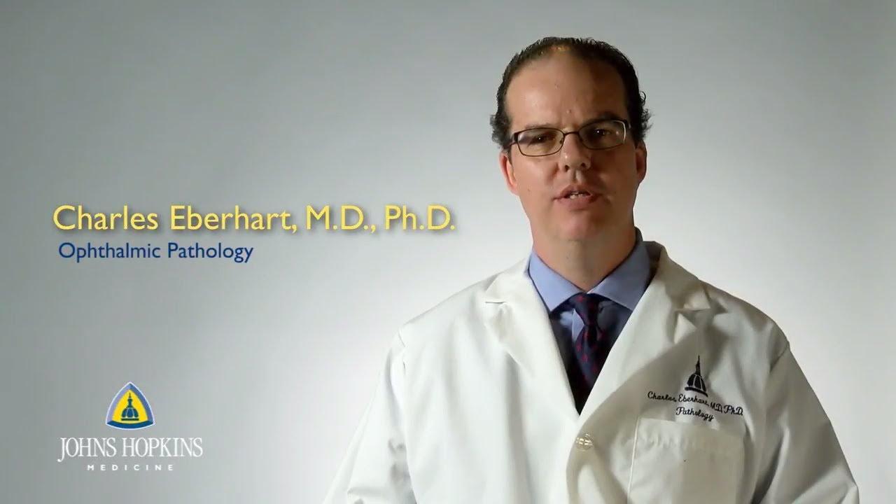 Dr. Charles Eberhart | Ophthalmic Pathology - YouTube