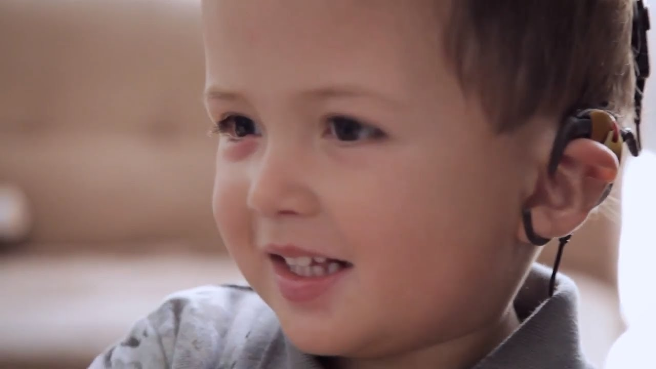 Cochlear Implant | Mateo's Story - YouTube