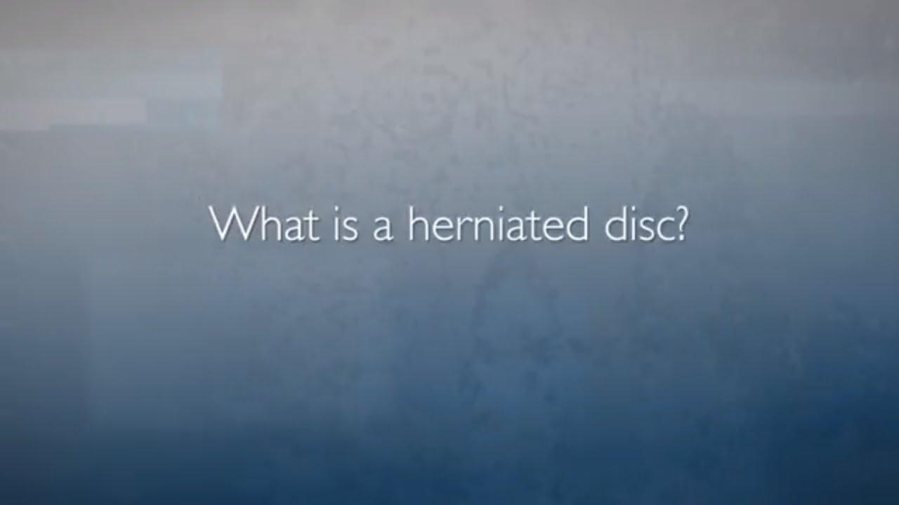 Minimally Invasive Spine Surgery: Microdiscectomy | Herniated Disc FAQ - YouTube