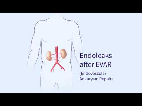 Endoleaks after Endovascular Repair of Thoracic Aortic Aneurysms (EVAR) - YouTube